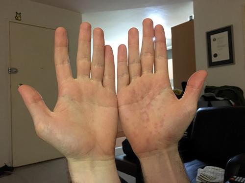 Mr Hands